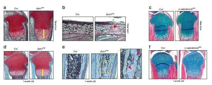 新闻 王拥军、陈棣联合团队在《Bone Research》发表骨发育调控机制的研究成果