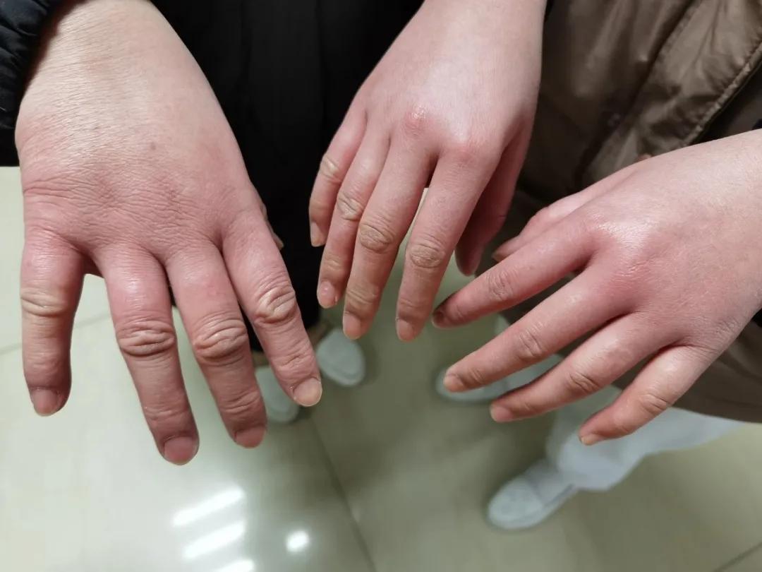 """终于找到了""""馒头""""手的主人,问一声:你的手现在消肿了吗?"""