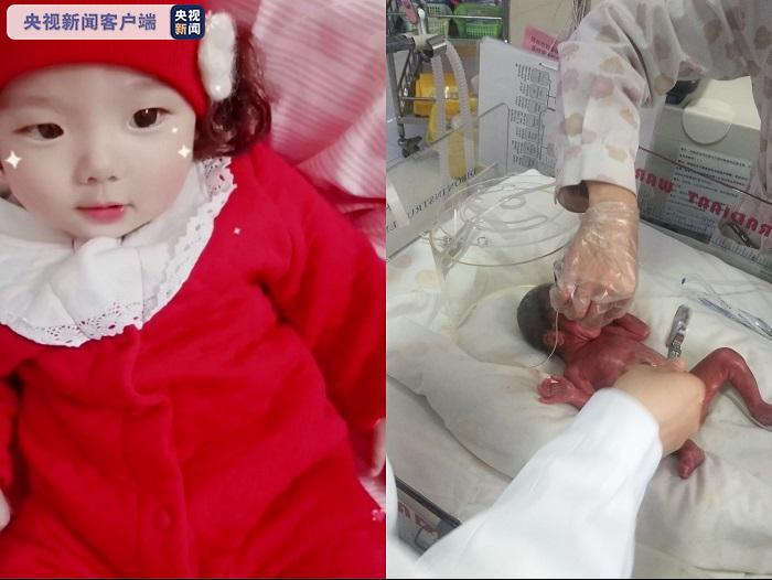 """出生只有900克 早产""""拇指姑娘""""在呵护中健康成长"""