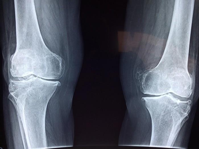 新图谱揭示了控制骨骼的基因 将有助于找到治疗骨病的方法