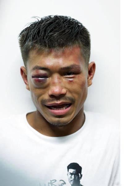 木村翔肿胀的右眼。