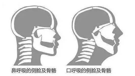 跑步时呼吸是用鼻子还是嘴?哪种方式更合理?