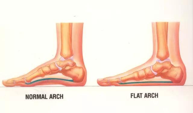 ▲ 左图是正常足弓,右图是扁平足足弓(足弓塌陷)
