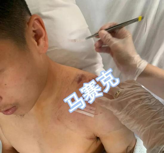 2019年肩部手术