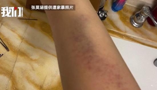 张培萌妻子曝光家暴称想夺回女儿 男方:无中生有