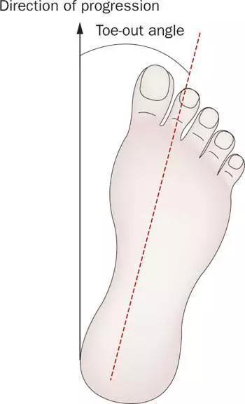 二、厉重的病理性外八字脚——臀肌挛缩