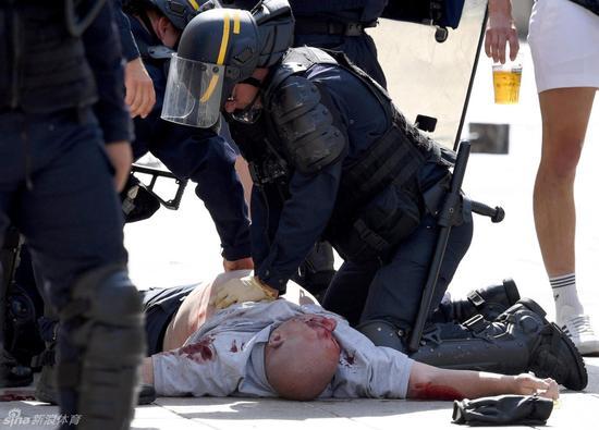 警察对受伤球迷做应急处理