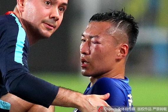 吴曦眼睛肿到只剩下一道缝 2年3次被踢伤退 图