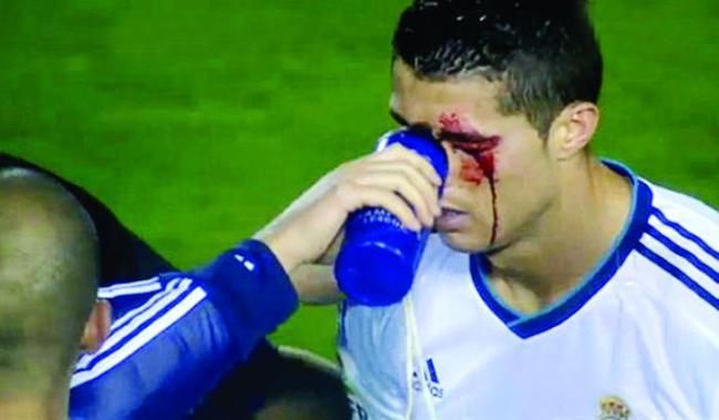 残暴!梅西C罗的非人待遇:鞋钉蹬膝盖 暴力肘脸