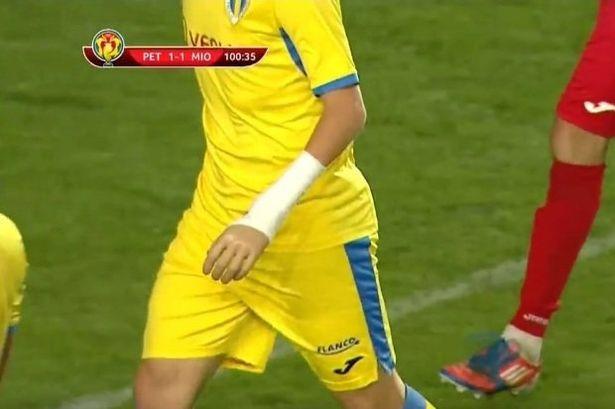 励志!足坛惊现残疾人 他戴上假肢也能上场踢球