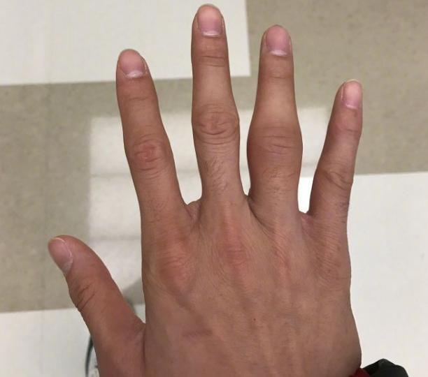 外围足球代理怎么做|郭艾伦晒出手指严重肿胀照片 已带伤出战数场