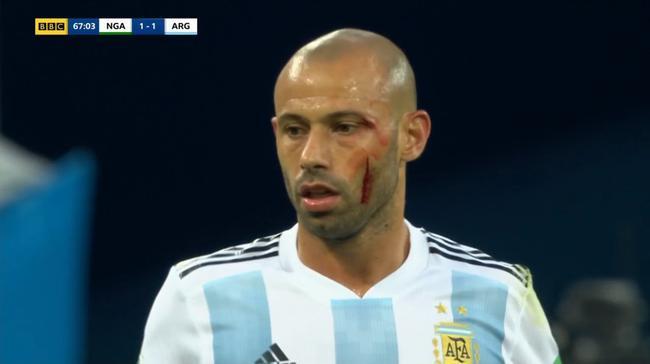 馬馬斯切拉諾在比賽中頭破血流