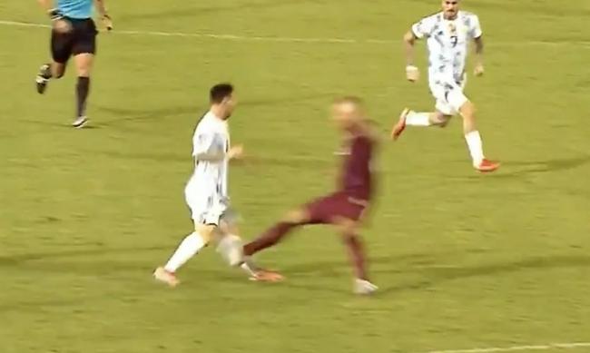 【博狗体育】世预赛:梅西遭严重犯规小腿受伤变形  对方吃红牌