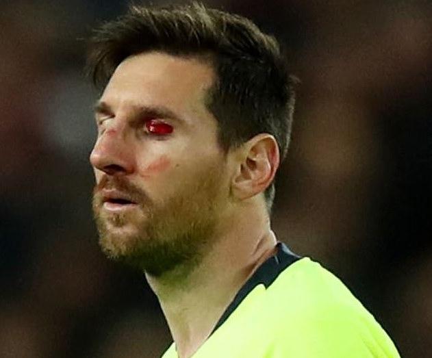 梅西在第一回相符中受伤