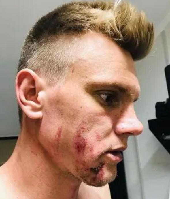 恐怖!巴西门将被对手一脚踹脸上 送到医院缝五针