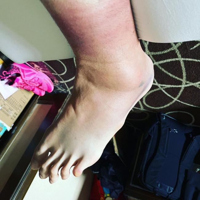 李慕豪晒肿胀脚踝:拖着这只脚坚持到了今天