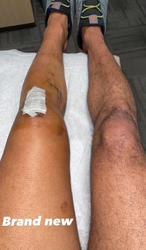 穆雷晒出手术后的膝盖照片 给自己打气:全新