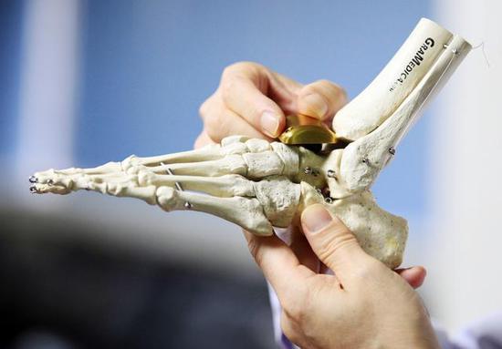 全球首例个性化3D打印距骨表面假体置换术在西安市红会医院完成