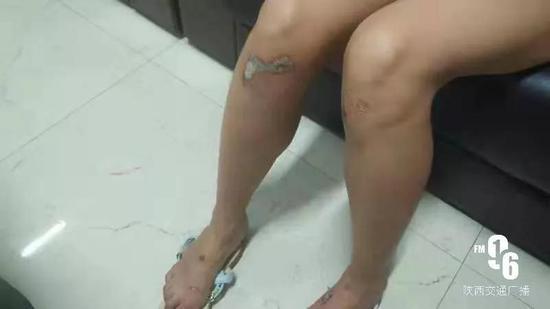 女子腿部受伤情况