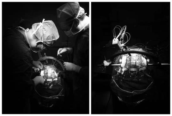 """让帕金森患者不再害""""帕""""——西安交大二附院神经外科开展首例脑深部电极植入术"""