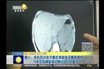 手机扔沙发反弹致孩子腹部受伤 11岁女孩脾脏被切除出血500毫升