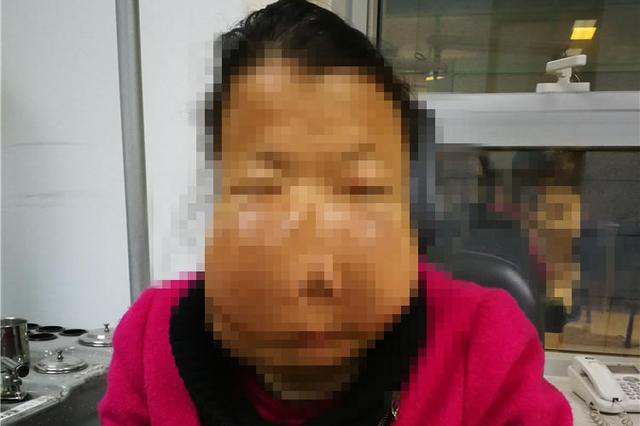 """陕西女子""""河马脸""""十多年 脸已经严重畸形"""