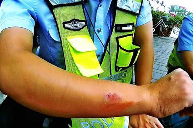 三轮车违法载人不听劝 男子阻碍执法咬伤交警