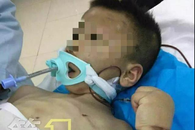 渭南男童被繼母虐待案將開庭 孩子目前仍半昏迷