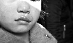 7岁女孩刚进校门 被狗扑倒咬穿嘴唇缝了十多针