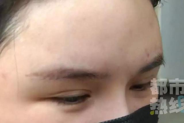 西安一女子注射童颜针遭毁容 额头现大量脓包