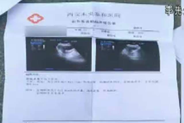 女子怀孕药流后不断出血 两家医院做B超结果出乎意料