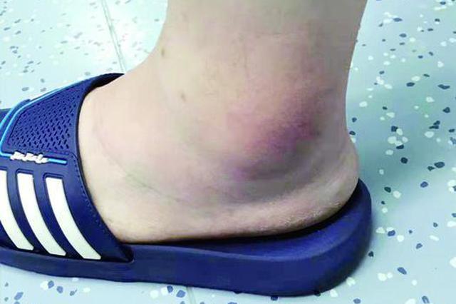 医生拖着病脚站6小时做手术 感动不少同事和患者