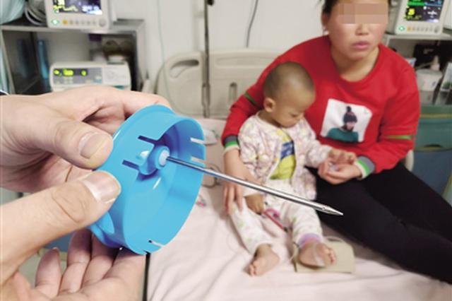 10厘米钢针插入1岁娃大脑 医生手术10分钟取出
