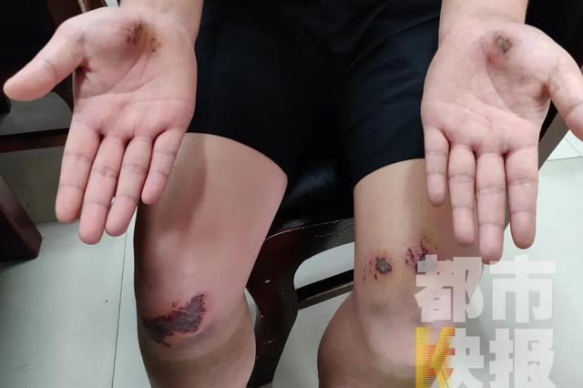 西安一辅警膝盖手掌摔伤抓住两名偷车贼