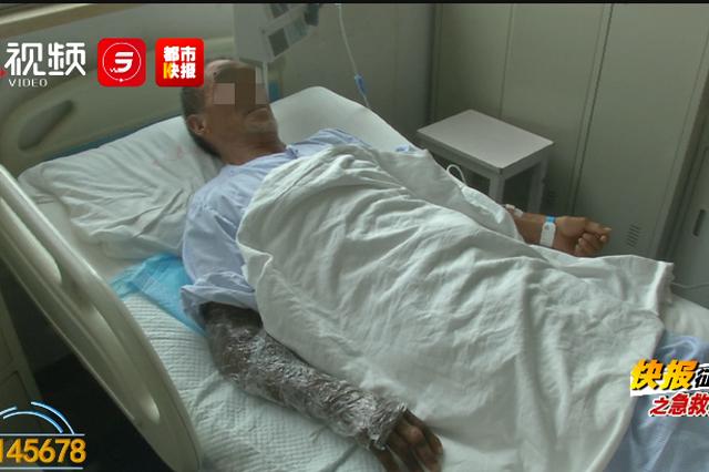 陜西六旬男子被蛇咬傷,右手腫脹緊急送醫