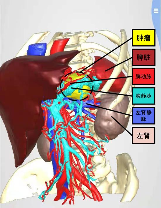"""""""方寸之间显身手""""——普通外科完成全腹腔镜下复杂腹膜后肿瘤切除术"""