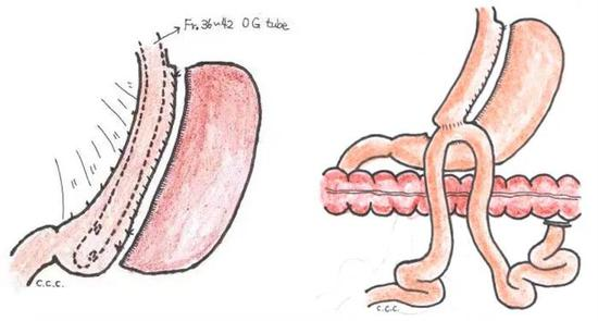"""苏州明基医院:你真的了解""""切胃手术""""吗? 详细解读减重手术"""