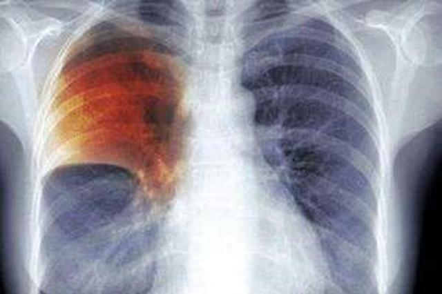 苏州肺结核发病率学生约占2.88% 远低于全国水平