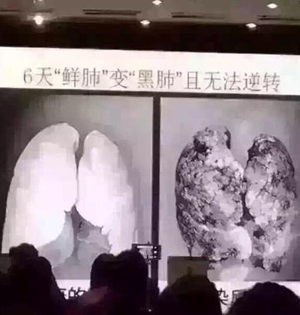"""""""雾霾6天鲜肺变黑肺""""不属实"""