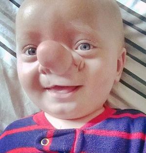 英男婴鼻根部长巨型肿块