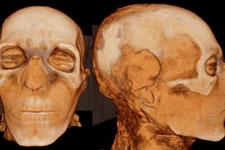 现代技术帮助木乃伊研究:从CT扫描到DNA分析