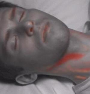 皮肤下自拍:微型摄像机追踪血流