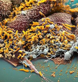 日本科学家发现可防治胃癌的酶