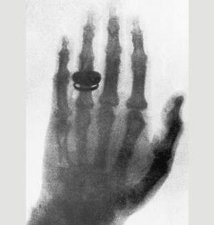 X射线百年历史:连超人都会震惊