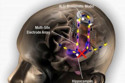 老年痴呆终结?未来大脑将植入记忆芯片