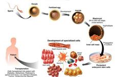成功率很小 风险很大:干细胞治疗的理想与现实