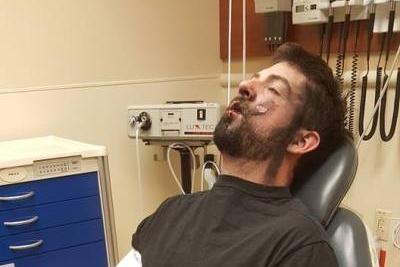 2017第一炸 电子烟炸掉7颗牙甚至毁容