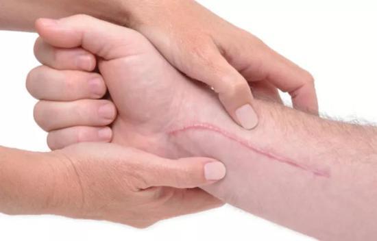 受伤的时候疼就算了,为什么伤好了还会留下疤??