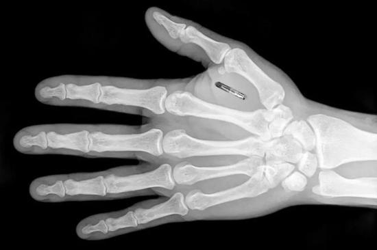 你好!就握个手,手机咋解锁了?| independent.co.uk