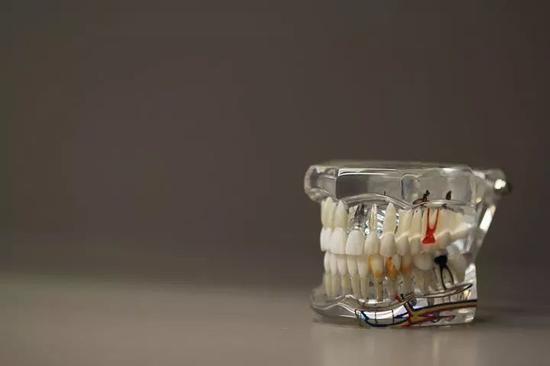 几滴药水,原装补牙!浙大科学家发明神奇补牙药水补牙药水